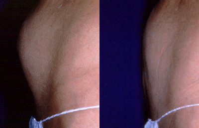 liposuction-before-after-tumescent.jpg