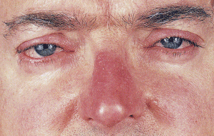 rosacea-affecting-eyes.jpg