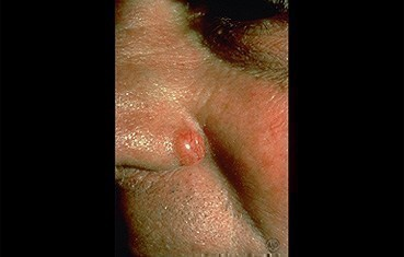 nodular-basal-cell-carcinoma-slide1.jpg